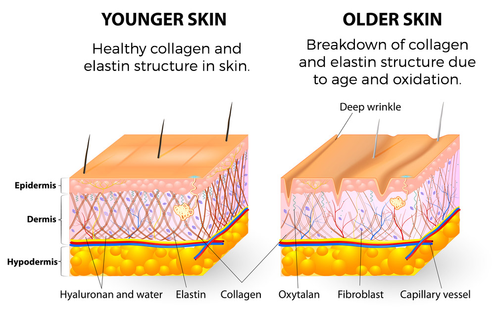 Aging-Skin-Graphics